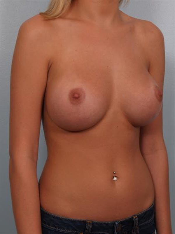 Breast Augmentation Gallery - Patient 1310541 - Image 6