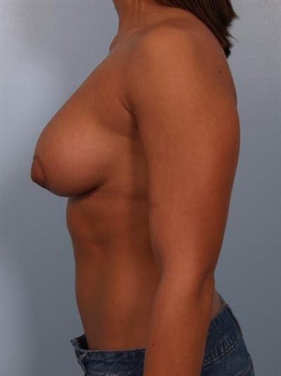 Tuberous Breast Surgery Gallery - Patient 1310539 - Image 6