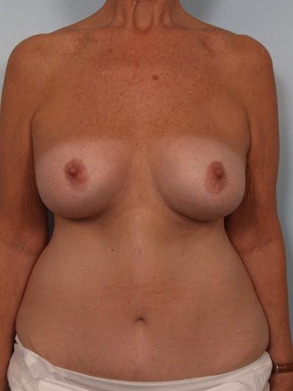Complex Breast Revision Gallery - Patient 1310544 - Image 1
