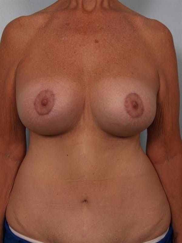 Complex Breast Revision Gallery - Patient 1310544 - Image 2