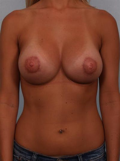 Tuberous Breast Surgery Gallery - Patient 1310545 - Image 2