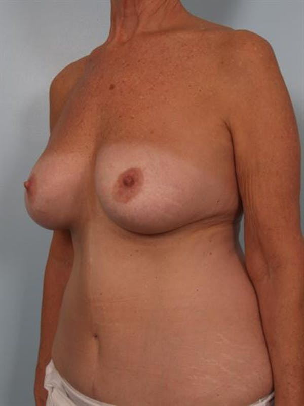 Complex Breast Revision Gallery - Patient 1310544 - Image 3