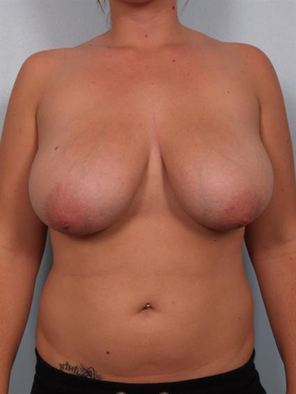Breast Reduction Gallery - Patient 1310546 - Image 1