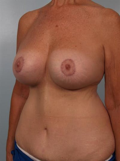 Complex Breast Revision Gallery - Patient 1310544 - Image 4