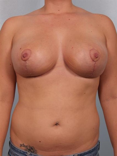 Breast Reduction Gallery - Patient 1310546 - Image 2