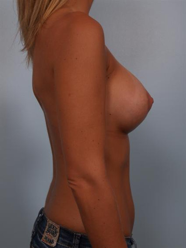 Tuberous Breast Surgery Gallery - Patient 1310545 - Image 4