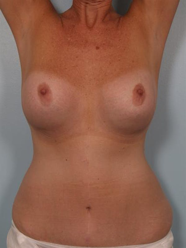Complex Breast Revision Gallery - Patient 1310544 - Image 5