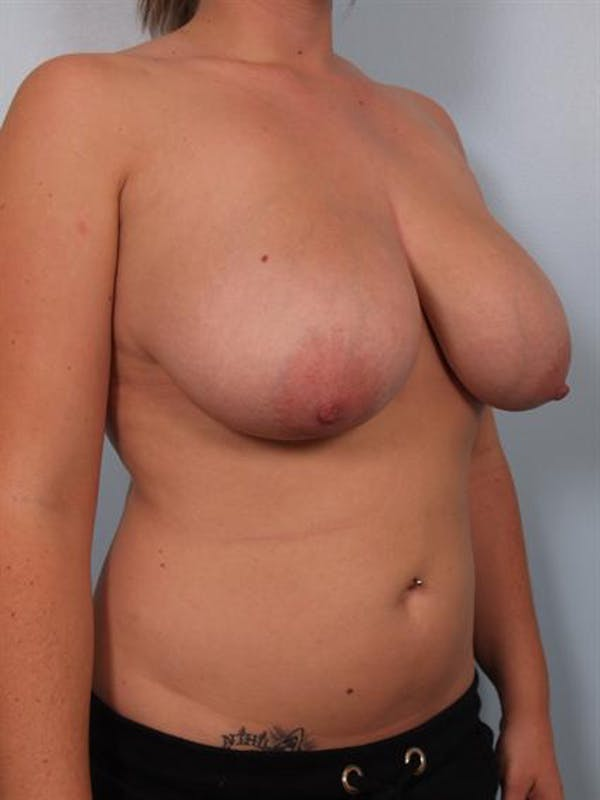 Breast Reduction Gallery - Patient 1310546 - Image 3
