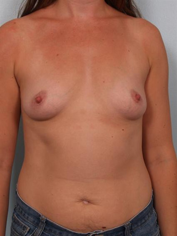 Breast Augmentation Gallery - Patient 1310550 - Image 1
