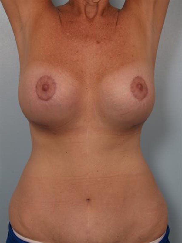 Complex Breast Revision Gallery - Patient 1310544 - Image 6