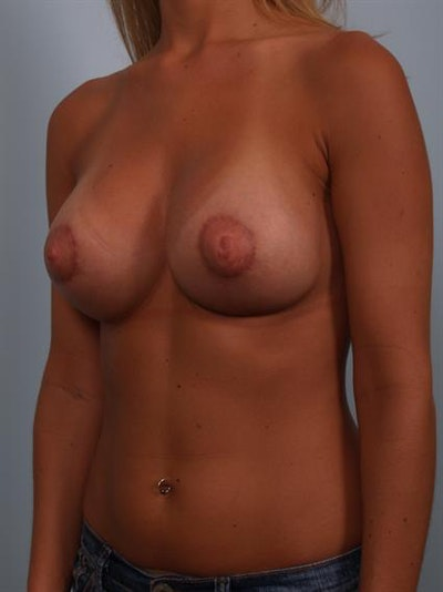 Tuberous Breast Surgery Gallery - Patient 1310545 - Image 6