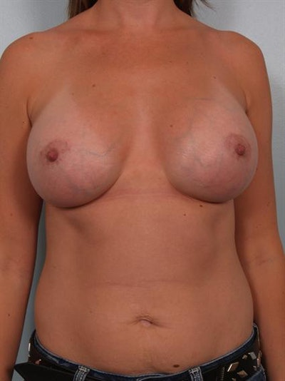 Breast Augmentation Gallery - Patient 1310550 - Image 2