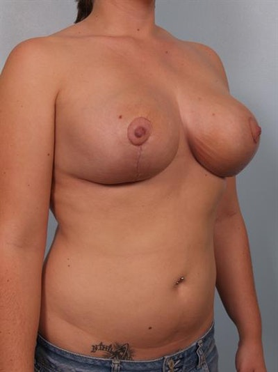 Breast Reduction Gallery - Patient 1310546 - Image 4