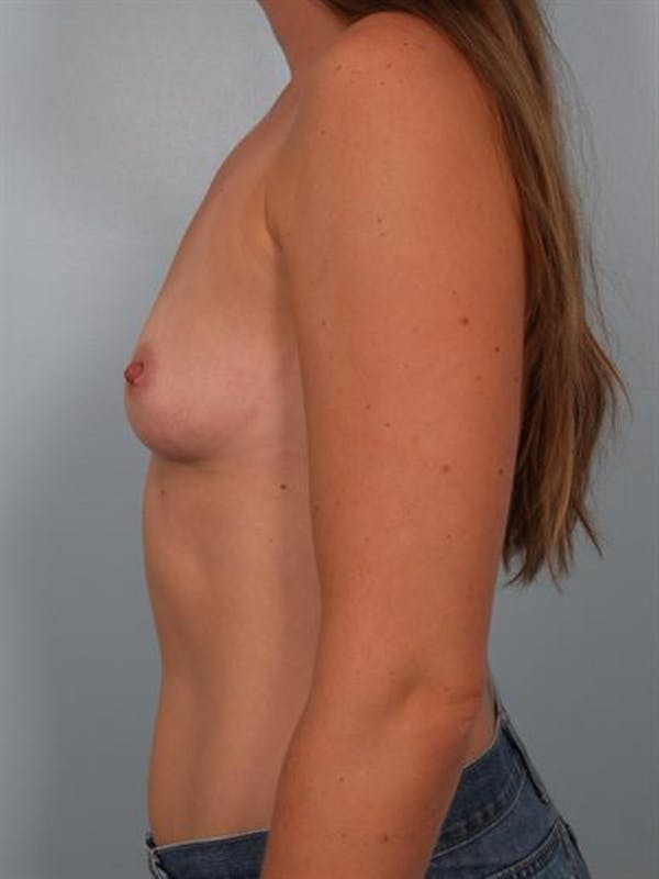 Breast Augmentation Gallery - Patient 1310550 - Image 3