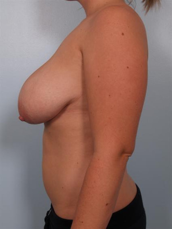 Breast Reduction Gallery - Patient 1310546 - Image 5
