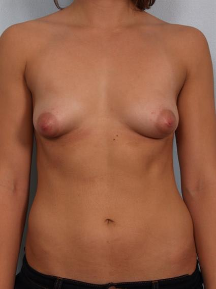 Tuberous Breast Surgery Gallery - Patient 1310552 - Image 1