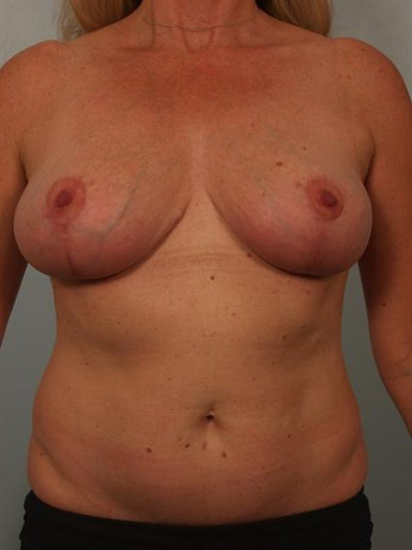 Fat Grafting Gallery - Patient 1310549 - Image 2