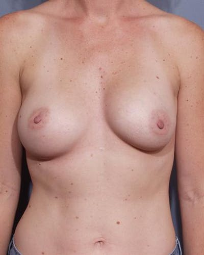 Complex Breast Revision Gallery - Patient 1310551 - Image 1