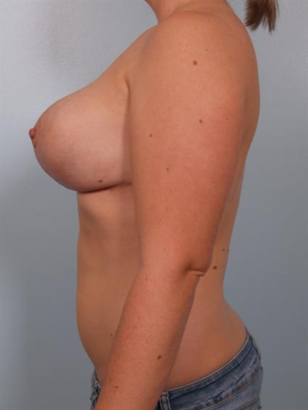 Breast Reduction Gallery - Patient 1310546 - Image 6