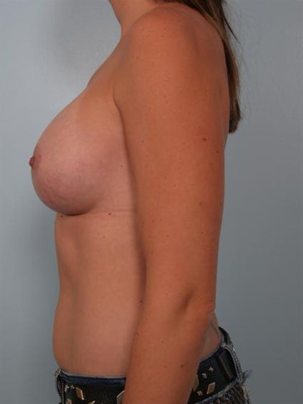 Breast Augmentation Gallery - Patient 1310550 - Image 4