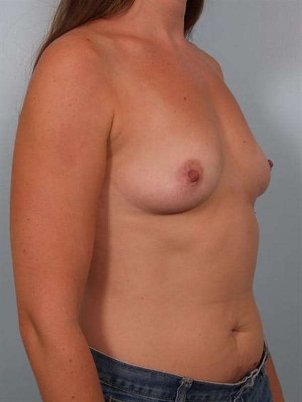 Breast Augmentation Gallery - Patient 1310550 - Image 5