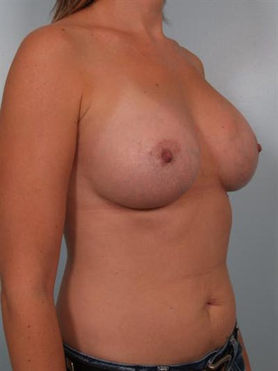 Breast Augmentation Gallery - Patient 1310550 - Image 6