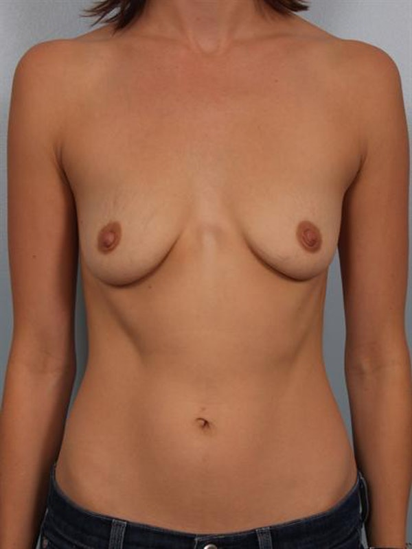 Breast Lift Gallery - Patient 1310554 - Image 1