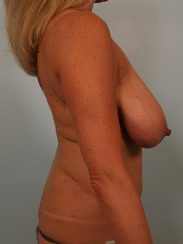 Fat Grafting Gallery - Patient 1310549 - Image 5