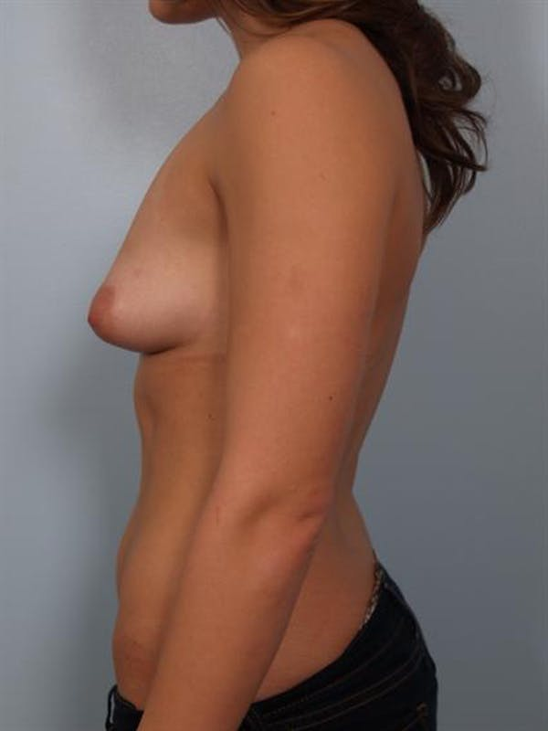 Tuberous Breast Surgery Gallery - Patient 1310552 - Image 3