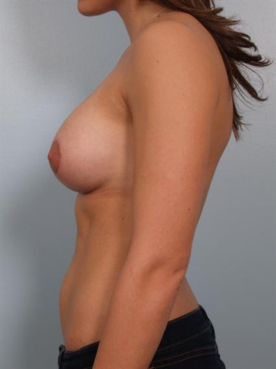 Tuberous Breast Surgery Gallery - Patient 1310552 - Image 4