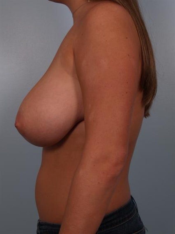 Breast Reduction Gallery - Patient 1310555 - Image 3