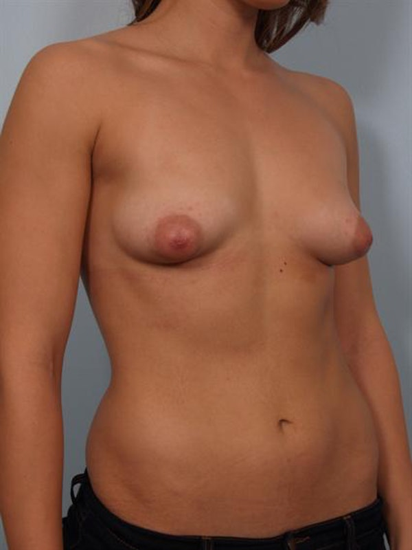 Tuberous Breast Surgery Gallery - Patient 1310552 - Image 5