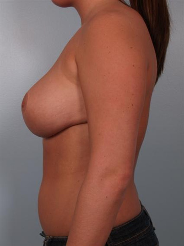 Breast Reduction Gallery - Patient 1310555 - Image 4