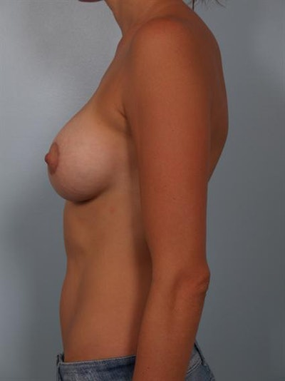 Breast Lift Gallery - Patient 1310554 - Image 4