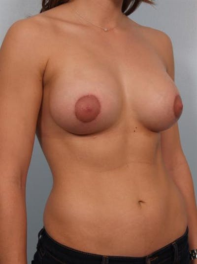 Tuberous Breast Surgery Gallery - Patient 1310552 - Image 6