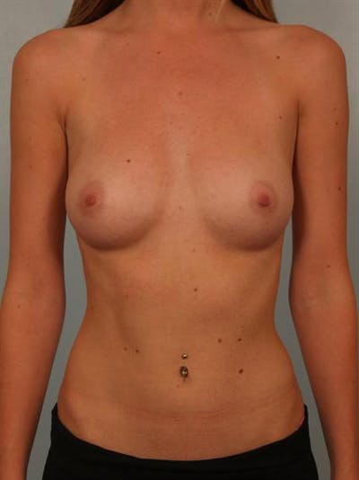 Breast Augmentation Gallery - Patient 1310558 - Image 1