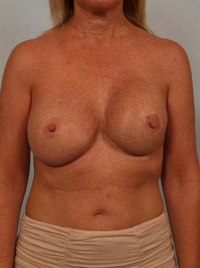 Complex Breast Revision Gallery - Patient 1310560 - Image 1