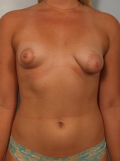 Tuberous Breast Surgery Gallery - Patient 1310559 - Image 1