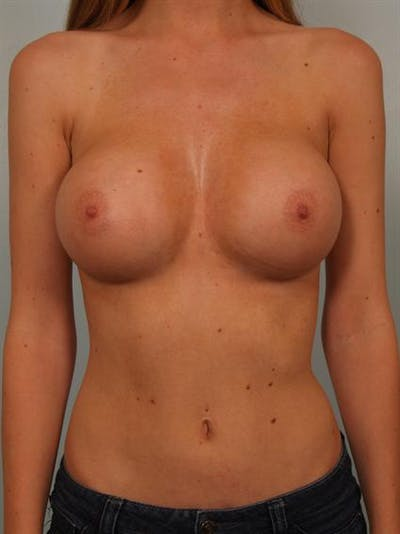 Breast Augmentation Gallery - Patient 1310558 - Image 2