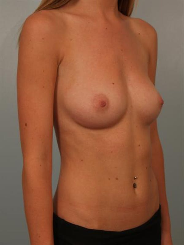 Breast Augmentation Gallery - Patient 1310558 - Image 3