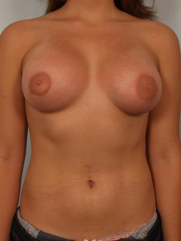 Tuberous Breast Surgery Gallery - Patient 1310559 - Image 2