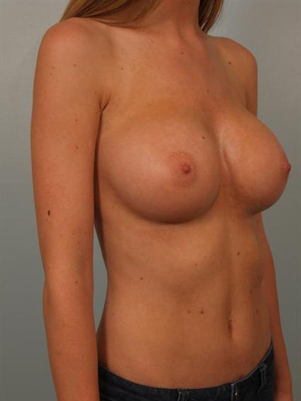 Breast Augmentation Gallery - Patient 1310558 - Image 4