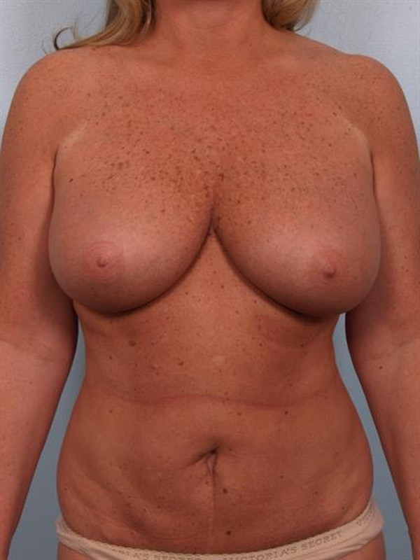 Breast Reduction Gallery - Patient 1310563 - Image 1