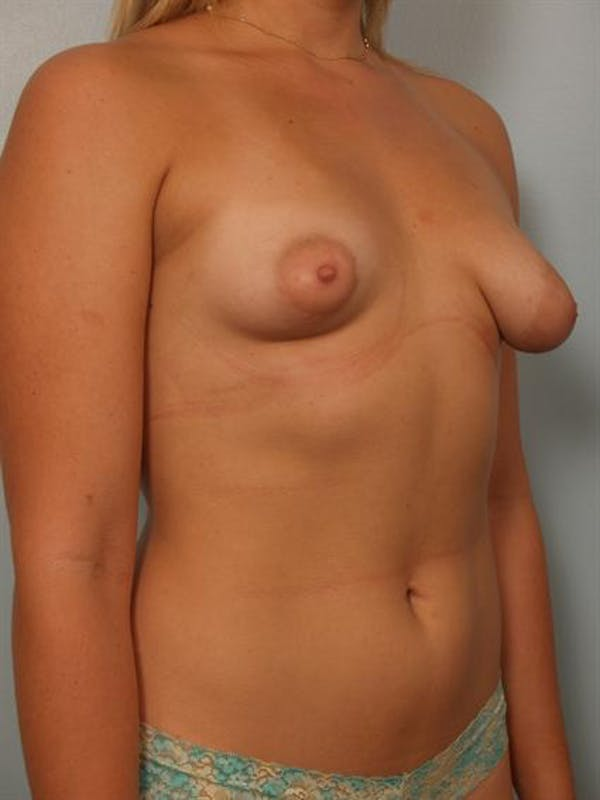 Tuberous Breast Surgery Gallery - Patient 1310559 - Image 3
