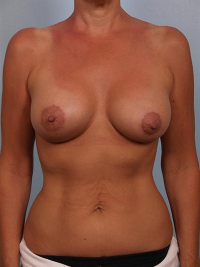 Breast Lift Gallery - Patient 1310561 - Image 2