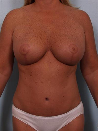 Breast Reduction Gallery - Patient 1310563 - Image 2