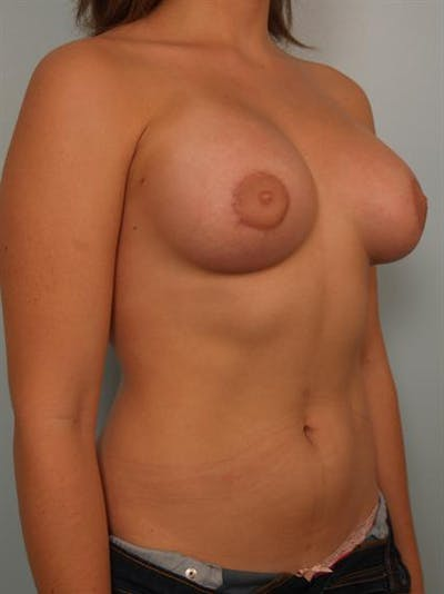 Tuberous Breast Surgery Gallery - Patient 1310559 - Image 4