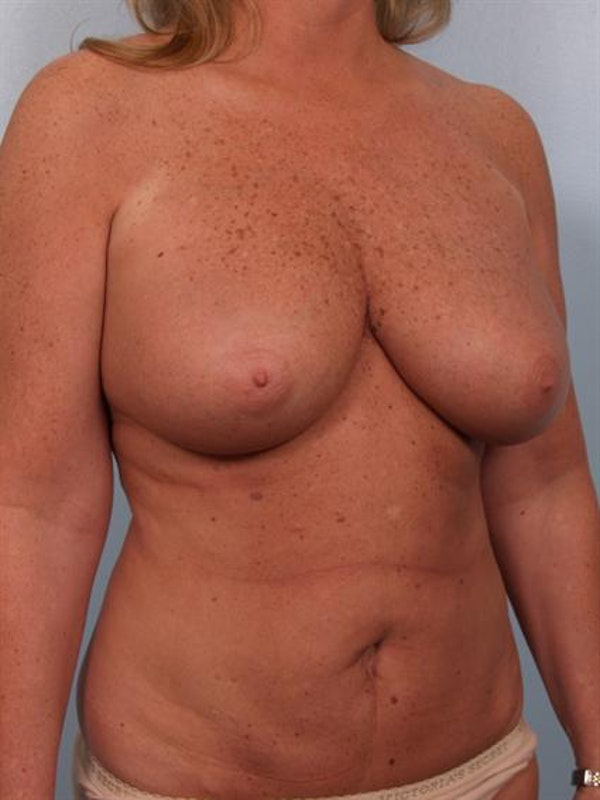 Breast Reduction Gallery - Patient 1310563 - Image 3