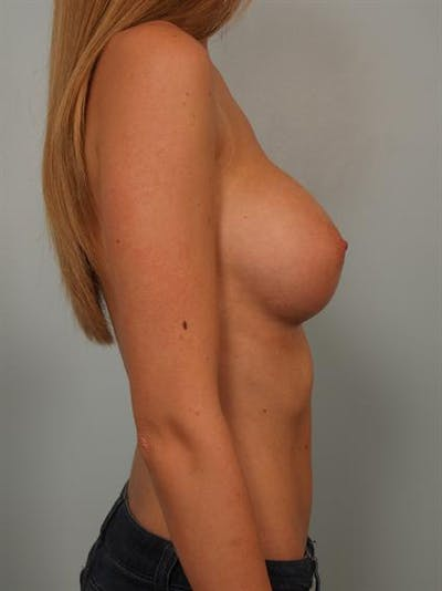 Breast Augmentation Gallery - Patient 1310558 - Image 6