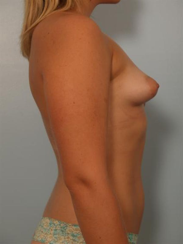 Tuberous Breast Surgery Gallery - Patient 1310559 - Image 5
